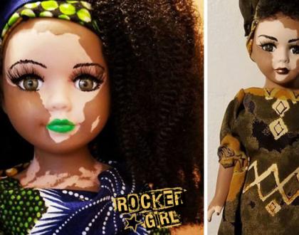 Um artista criou bonecas com Vitiligo que são maravilhosas, para crianças com essa condição de pele